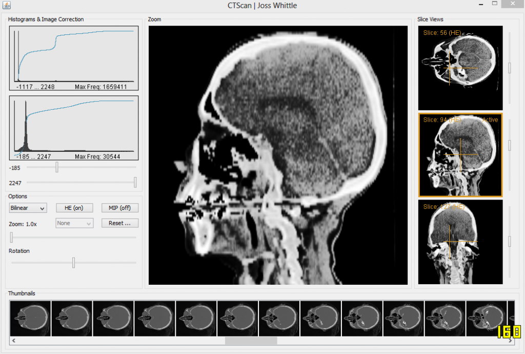 2nd year CT Scan coursework